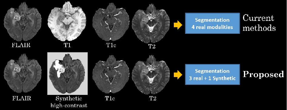 Figure 1 for Brain Tumor Synthetic Segmentation in 3D Multimodal MRI Scans