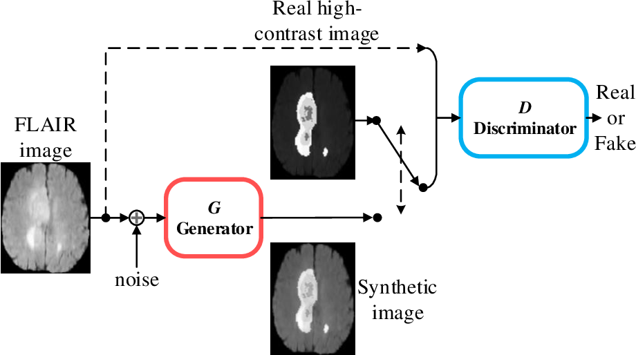 Figure 3 for Brain Tumor Synthetic Segmentation in 3D Multimodal MRI Scans
