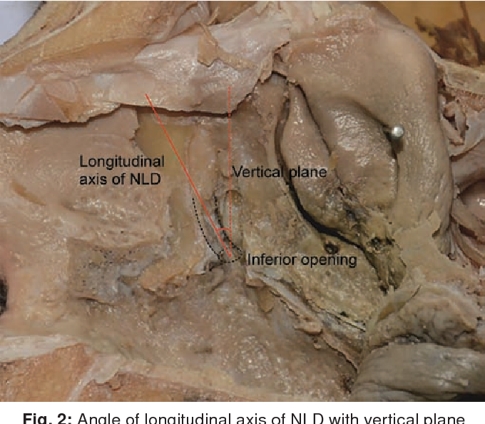 Surgical Anatomy of Nasolacrimal Duct and Sac in Human Cadavers ...