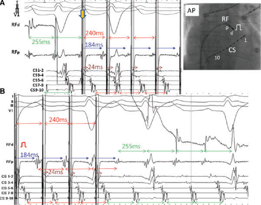 Figure 2 from Entrainment mapping of perimitral flutter  - Semantic