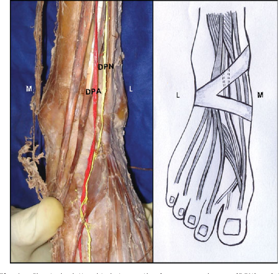 Relationship between the deep peroneal nerve and dorsalis pedis ...