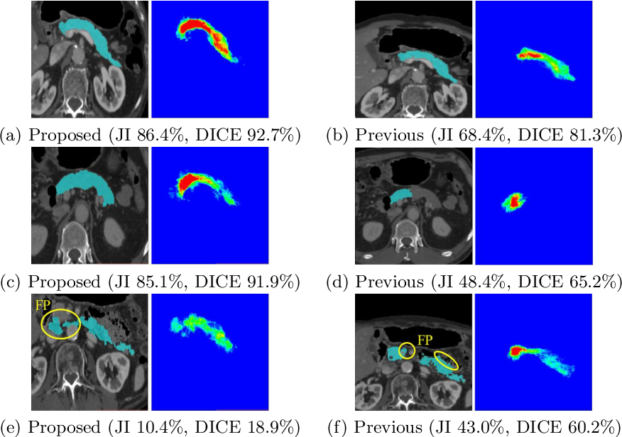 Figure 4 for Regression Forest-Based Atlas Localization and Direction Specific Atlas Generation for Pancreas Segmentation