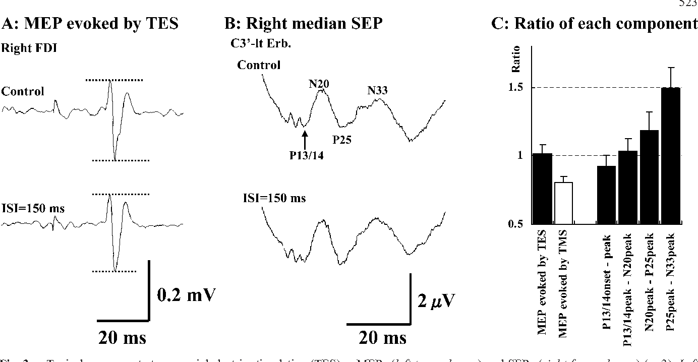 Effects Of Motor Cortical Stimulation On The Excitability Of
