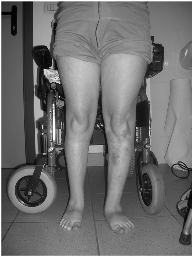 Figure 2. Valgus-pronated feet and dermatological lesions on the left leg.