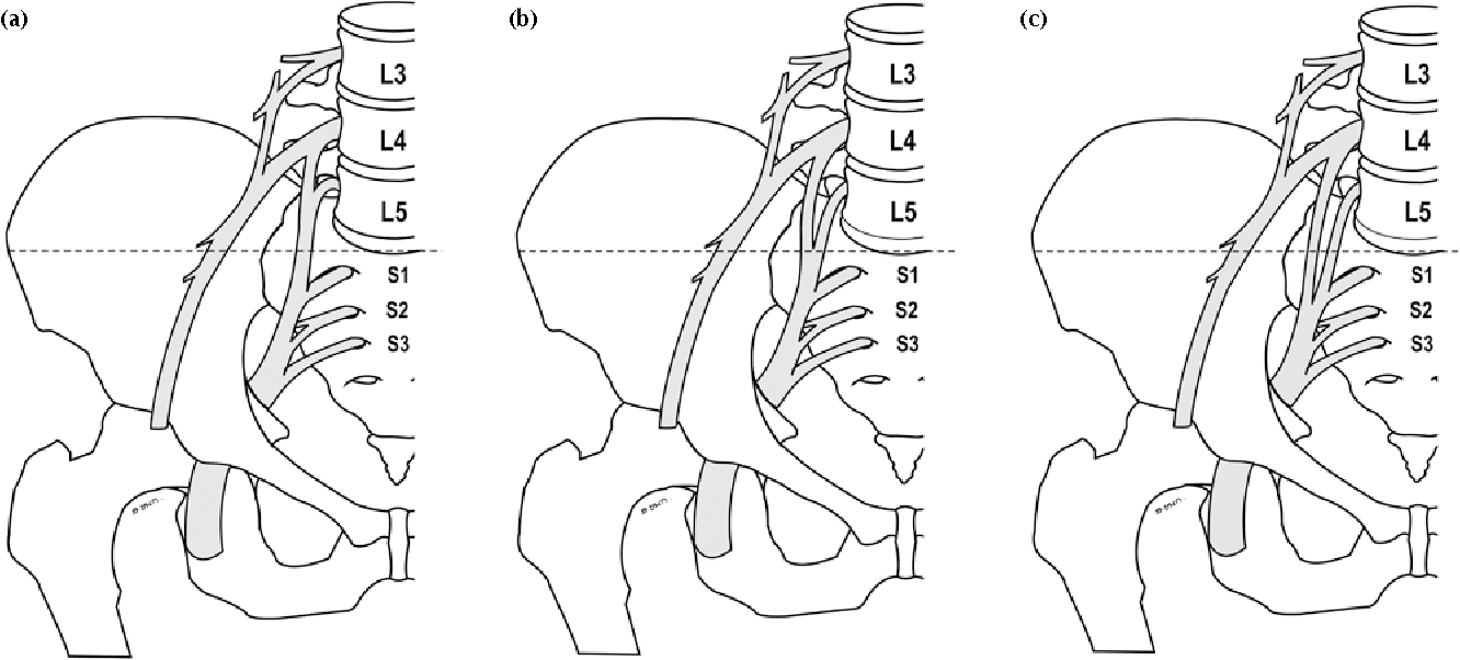Figure 2 From Anatomy Of L4 To S3 Nerve Roots Semantic Scholar