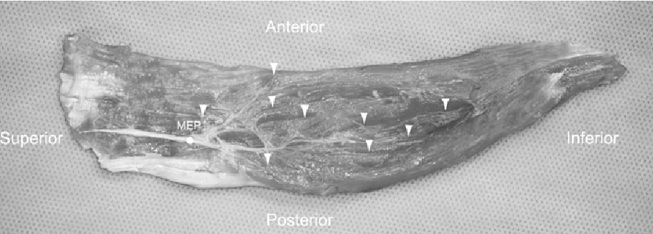 Fig. 1 Photographs of the dissected left sternocleidomastoid muscle showing the motor entry point (MEP) and intramuscular motor point. Arrow-heads indicate the intramuscular motor point