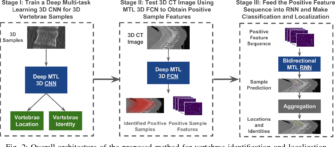 Figure 2 for Joint Vertebrae Identification and Localization in Spinal CT Images by Combining Short- and Long-Range Contextual Information