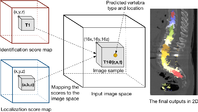 Figure 4 for Joint Vertebrae Identification and Localization in Spinal CT Images by Combining Short- and Long-Range Contextual Information