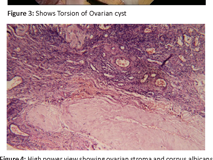 Figure 4: High power view showing ovarian stroma and corpus albicans
