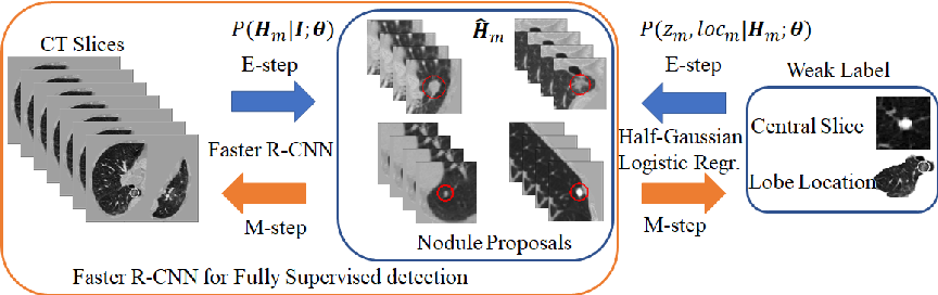 Figure 1 for DeepEM: Deep 3D ConvNets With EM For Weakly Supervised Pulmonary Nodule Detection