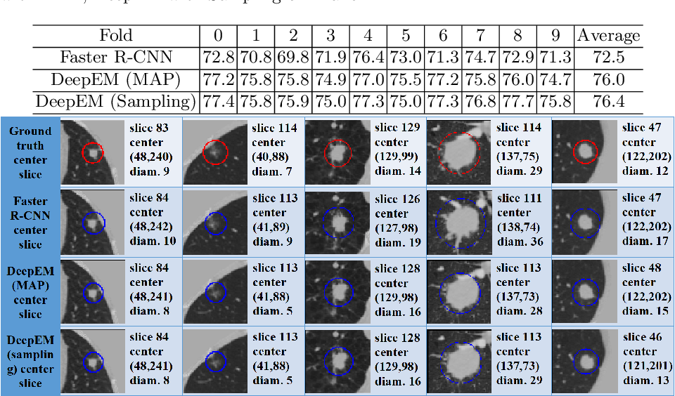 Figure 2 for DeepEM: Deep 3D ConvNets With EM For Weakly Supervised Pulmonary Nodule Detection