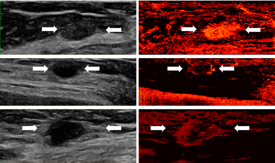 Figure 2 for Deep Algorithm Unrolling for Biomedical Imaging