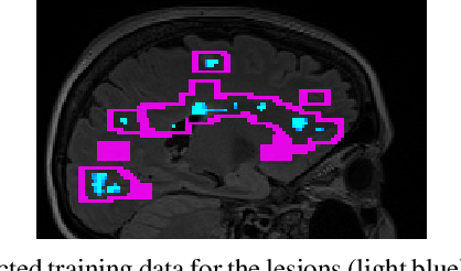 Figure 1 for Multi-compartment diffusion MRI, T2 relaxometry and myelin water imaging as neuroimaging descriptors for anomalous tissue detection