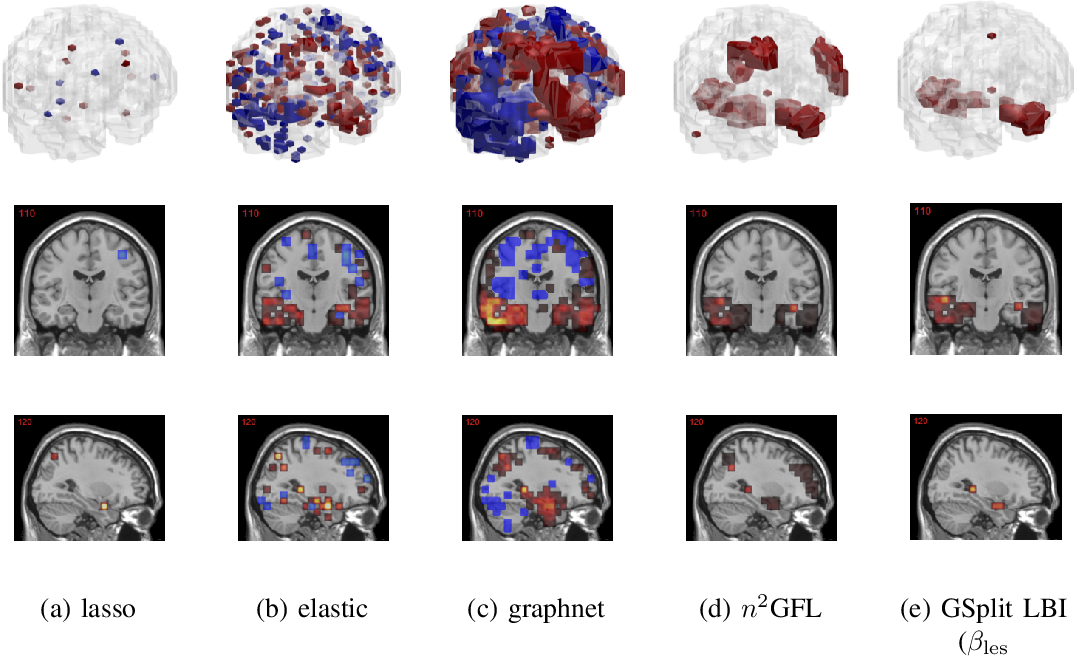Figure 2 for Leveraging both Lesion Features and Procedural Bias in Neuroimaging: An Dual-Task Split dynamics of inverse scale space