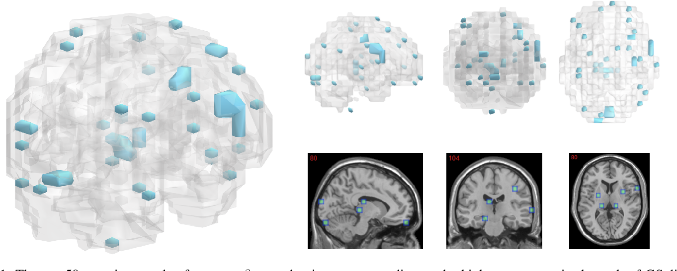 Figure 1 for Leveraging both Lesion Features and Procedural Bias in Neuroimaging: An Dual-Task Split dynamics of inverse scale space