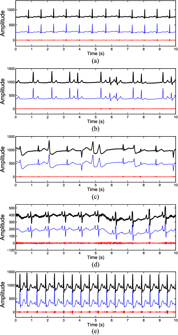 Figure 4 for A Novel Blaschke Unwinding Adaptive Fourier Decomposition based Signal Compression Algorithm with Application on ECG Signals