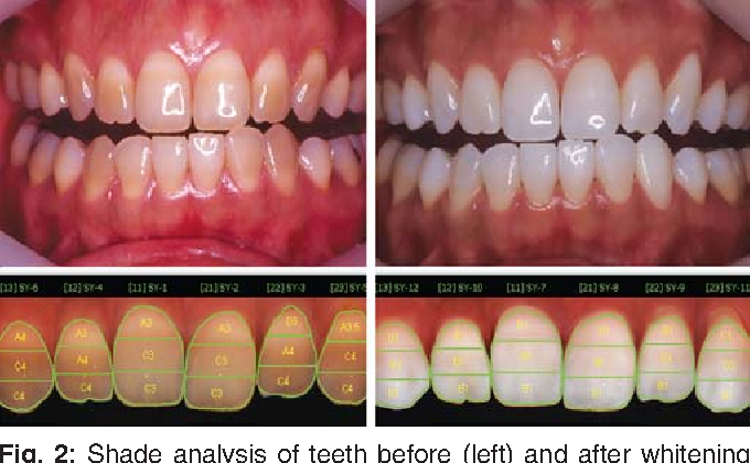Tooth Whitening Of Tetracycline Stained Teeth Semantic Scholar
