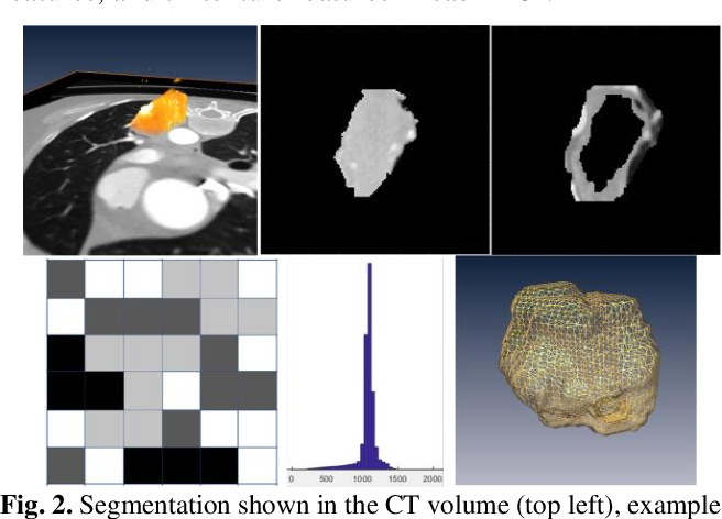 Figure 4 for A deep learning-facilitated radiomics solution for the prediction of lung lesion shrinkage in non-small cell lung cancer trials