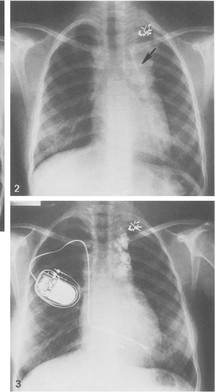 Figure 1 From Calcified Mediastinal Lymph Nodes In Hodgkins Disease