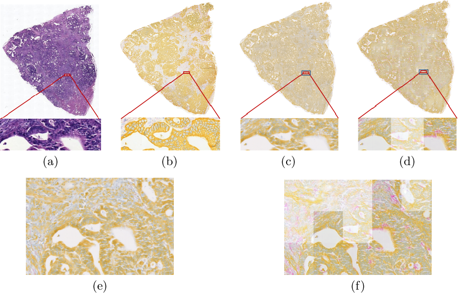 Figure 3 for Perceptual Embedding Consistency for Seamless Reconstruction of Tilewise Style Transfer