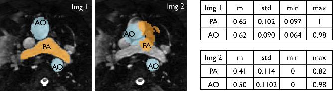 Figure 2 for Multi-Atlas Based Pathological Stratification of d-TGA Congenital Heart Disease