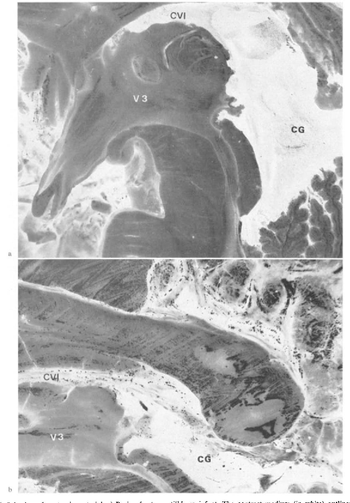 Figure 1 from Cavum veli interpositi. Roentgen anatomy — Pathology ...
