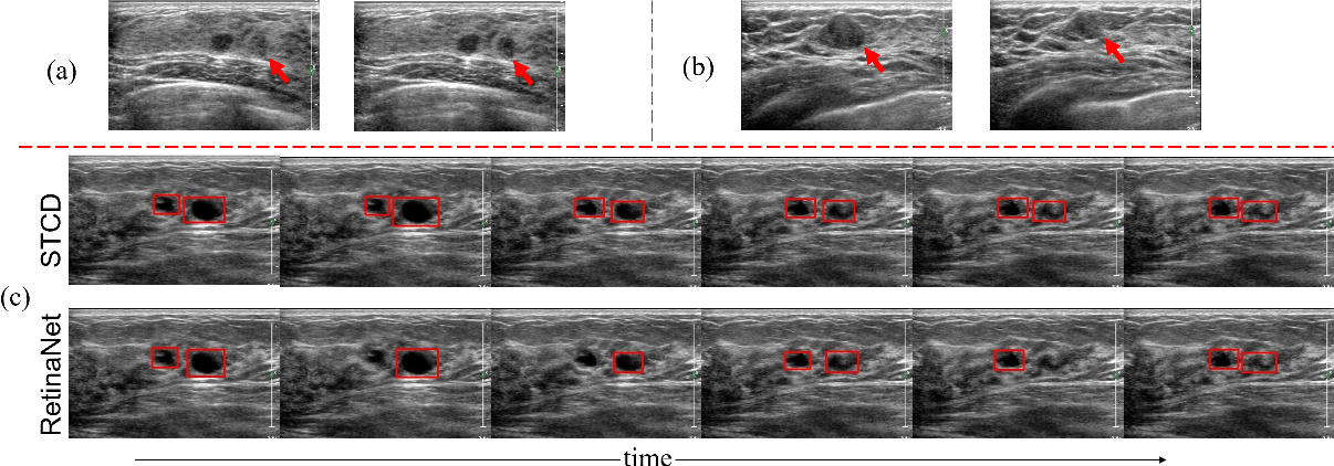 Figure 1 for Semi-supervised Breast Lesion Detection in Ultrasound Video Based on Temporal Coherence
