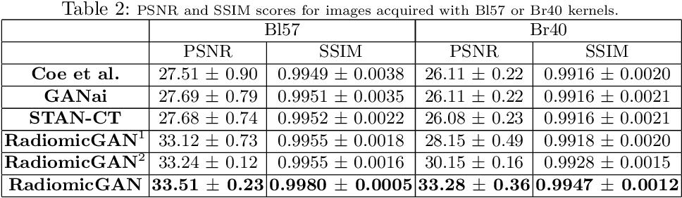 Figure 4 for CT Image Harmonization for Enhancing Radiomics Studies