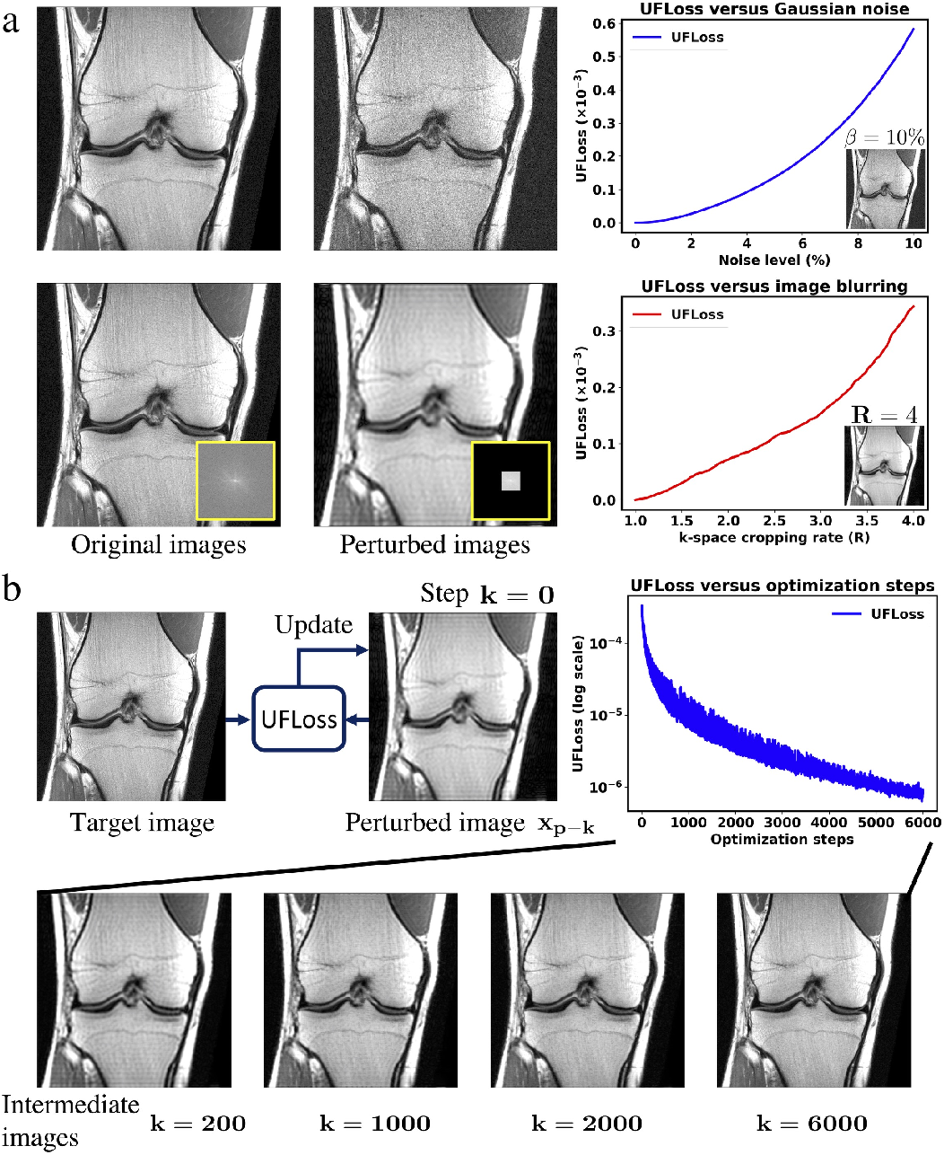 Figure 4 for High Fidelity Deep Learning-based MRI Reconstruction with Instance-wise Discriminative Feature Matching Loss