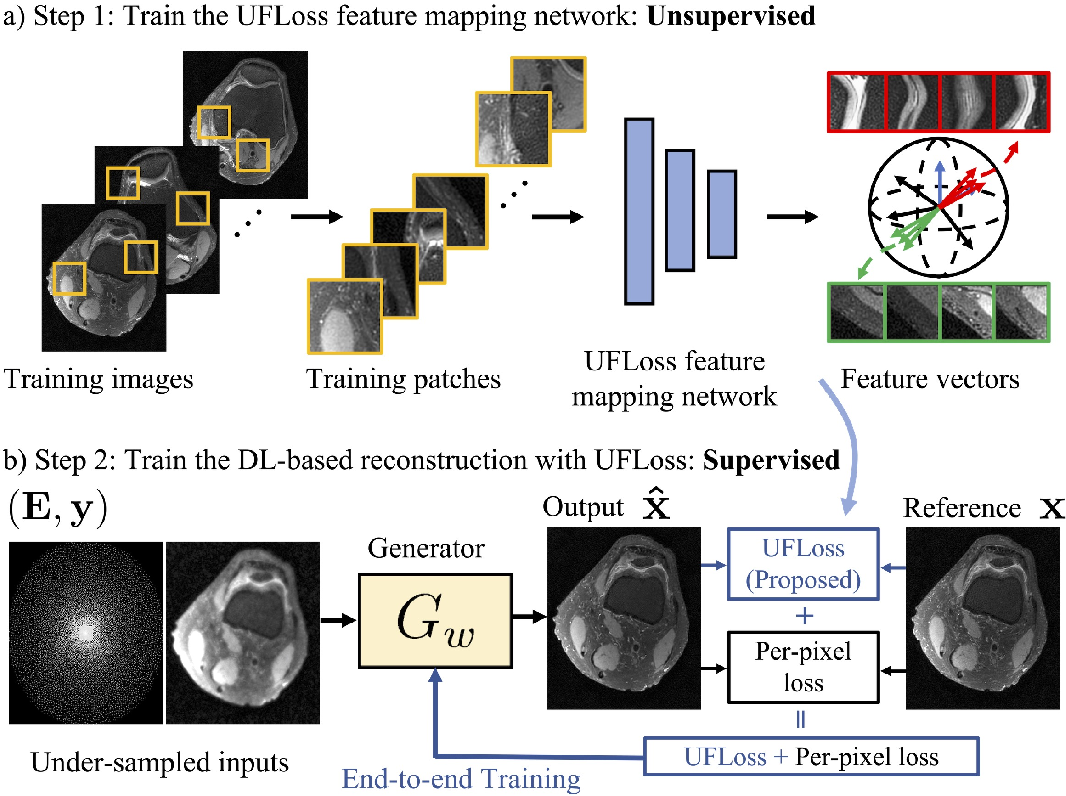 Figure 1 for High Fidelity Deep Learning-based MRI Reconstruction with Instance-wise Discriminative Feature Matching Loss