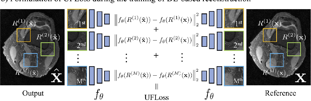 Figure 2 for High Fidelity Deep Learning-based MRI Reconstruction with Instance-wise Discriminative Feature Matching Loss