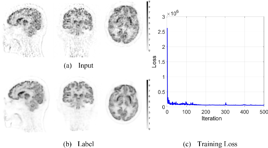 Figure 4 for Clinically Translatable Direct Patlak Reconstruction from Dynamic PET with Motion Correction Using Convolutional Neural Network