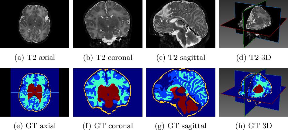 Figure 1 for Reducing Textural Bias Improves Robustness of Deep Segmentation CNNs