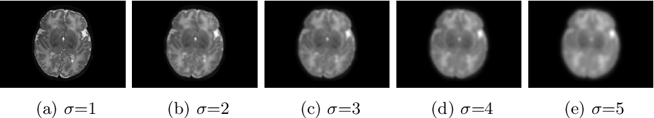 Figure 3 for Reducing Textural Bias Improves Robustness of Deep Segmentation CNNs