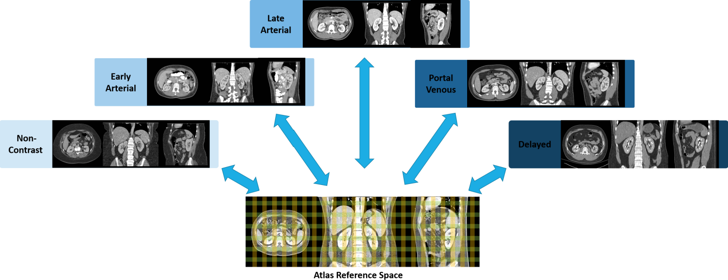 Figure 1 for Multi-Contrast Computed Tomography Healthy Kidney Atlas