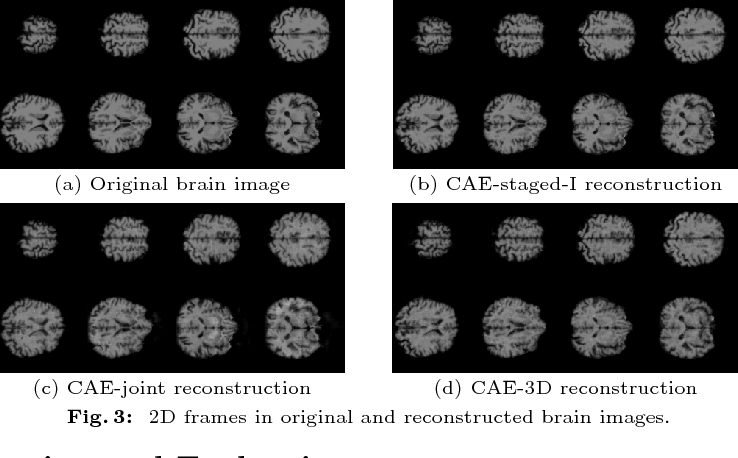 Figure 4 for Large-Scale Unsupervised Deep Representation Learning for Brain Structure
