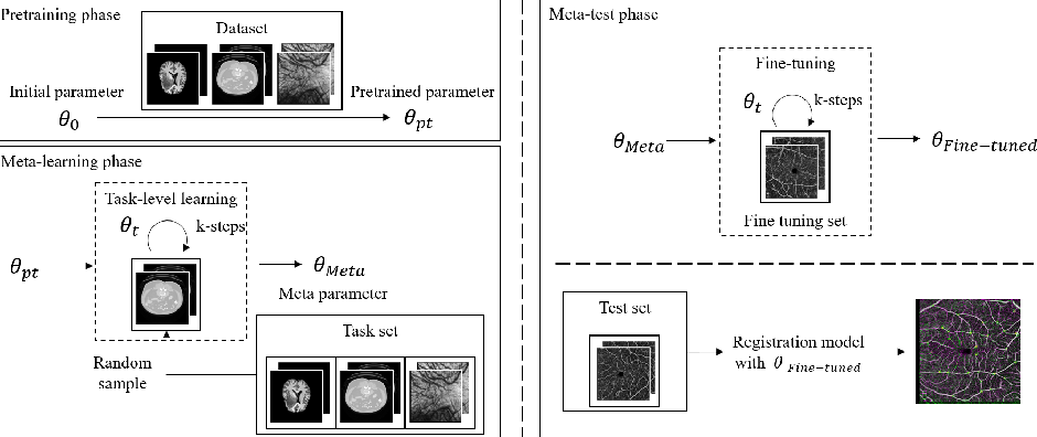 Figure 3 for A Meta-Learning Approach for Medical Image Registration