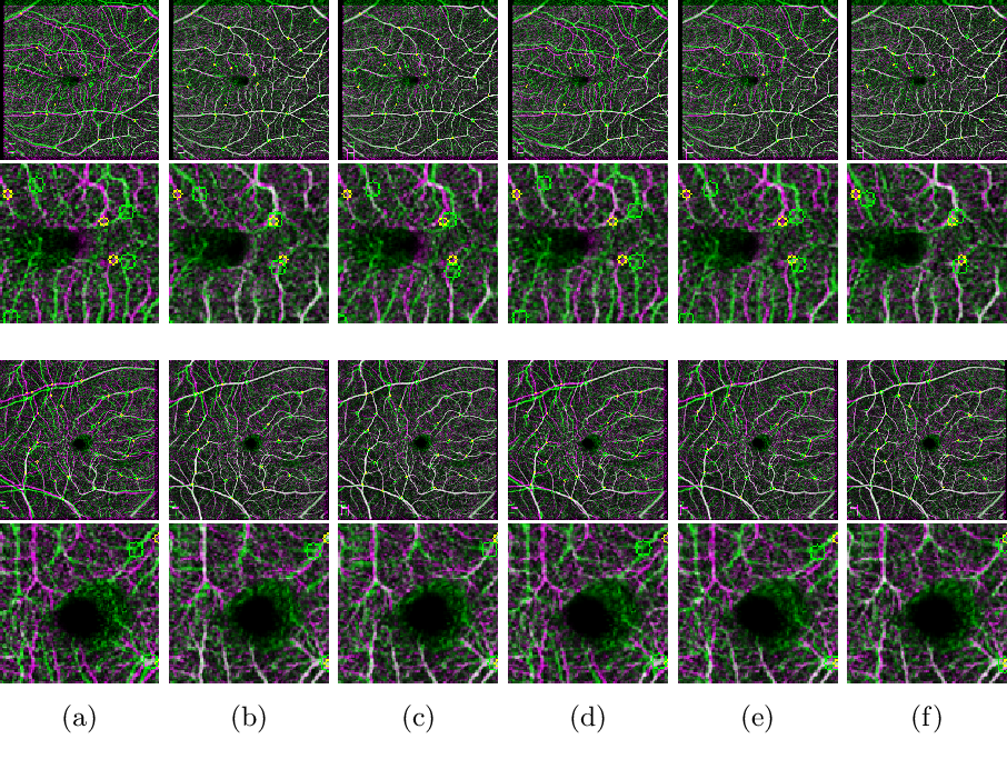 Figure 4 for A Meta-Learning Approach for Medical Image Registration