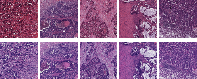 Figure 1 for The importance of stain normalization in colorectal tissue classification with convolutional networks