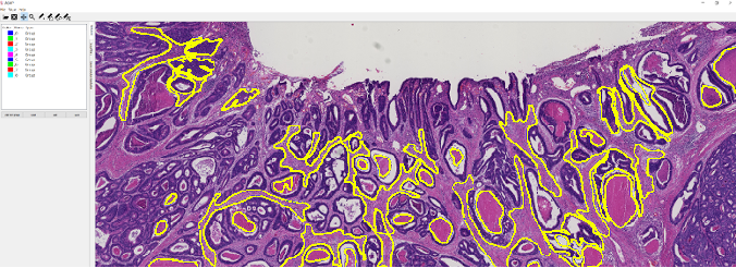 Figure 3 for The importance of stain normalization in colorectal tissue classification with convolutional networks