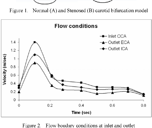 Comparison Of Flow In Normal And Stenosed Carotid Bulb Semantic