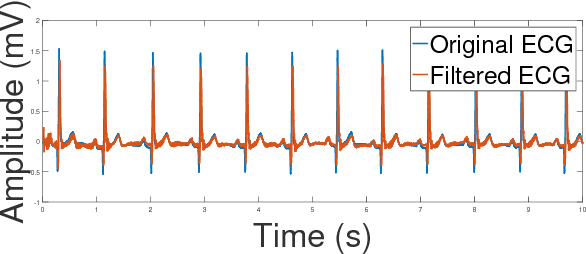 Figure 10 from Denoising ECG signals by applying discrete