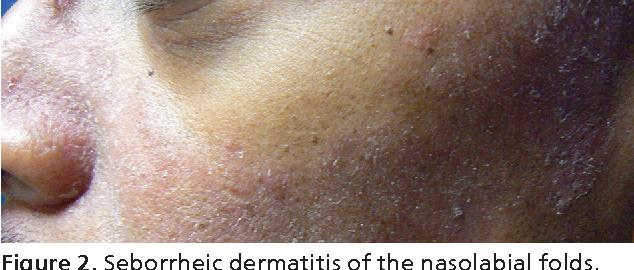 Figure 2 from Diagnosis and treatment of seborrheic dermatitis