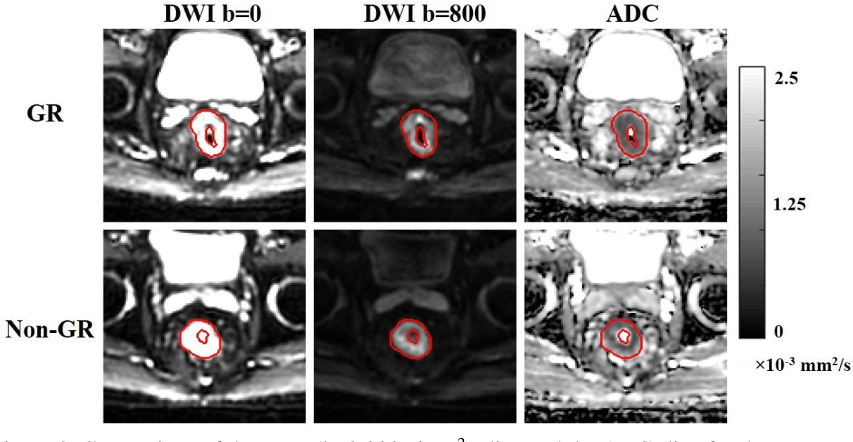 Figure 4 for Deep Learning-based Radiomic Features for Improving Neoadjuvant Chemoradiation Response Prediction in Locally Advanced Rectal Cancer