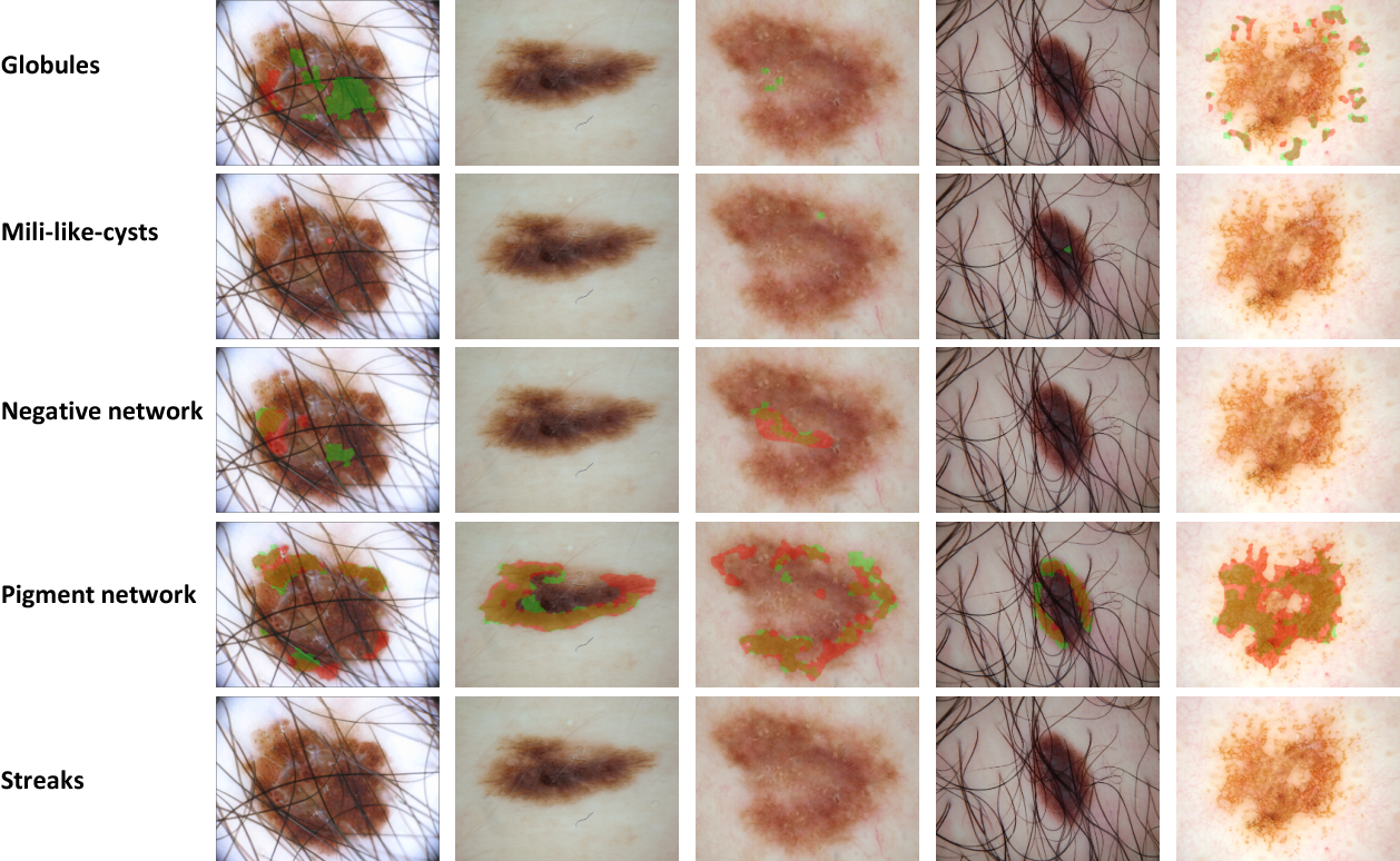 Figure 3 for Leveraging Transfer Learning for Segmenting Lesions and their Attributes in Dermoscopy Images