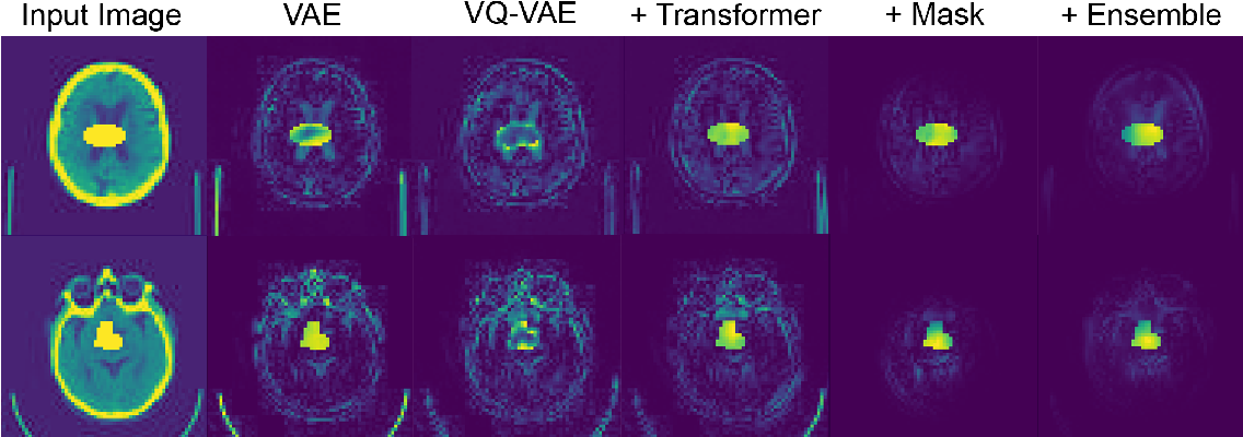 Figure 2 for Unsupervised Brain Anomaly Detection and Segmentation with Transformers