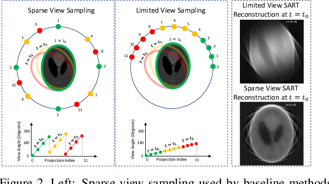 Figure 3 for Dynamic CT Reconstruction from Limited Views with Implicit Neural Representations and Parametric Motion Fields