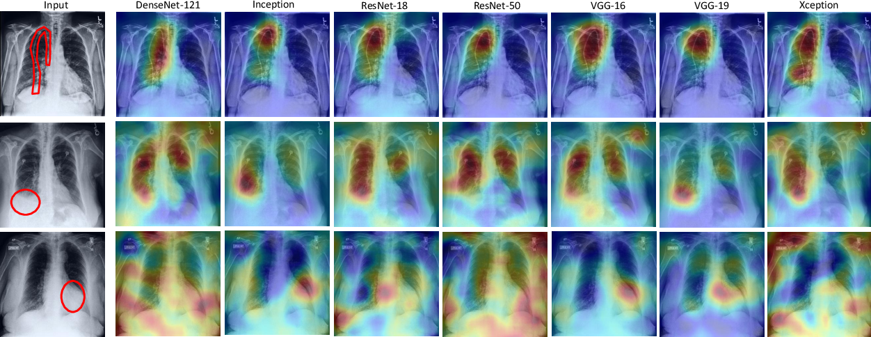 Figure 3 for A Systematic Search over Deep Convolutional Neural Network Architectures for Screening Chest Radiographs