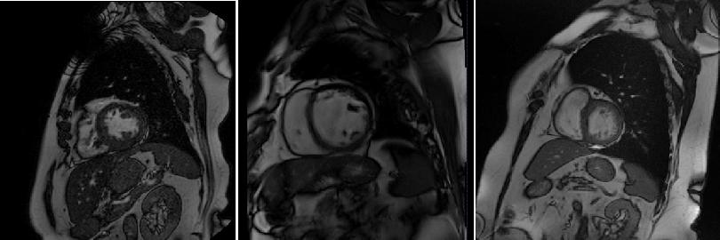Figure 1 for Domain-Adversarial Learning for Multi-Centre, Multi-Vendor, and Multi-Disease Cardiac MR Image Segmentation