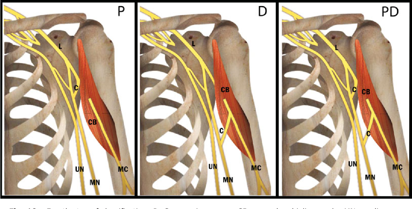 Figure 10 From Classifying Musculocutaneous Nerve Variations